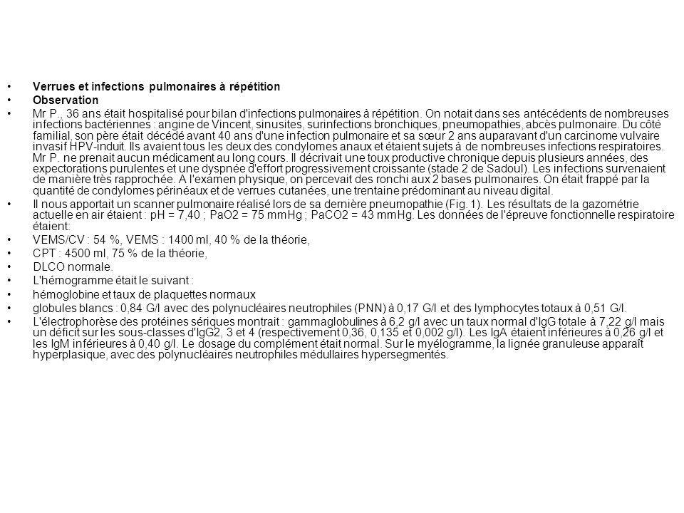 Verrues et infections pulmonaires à répétition