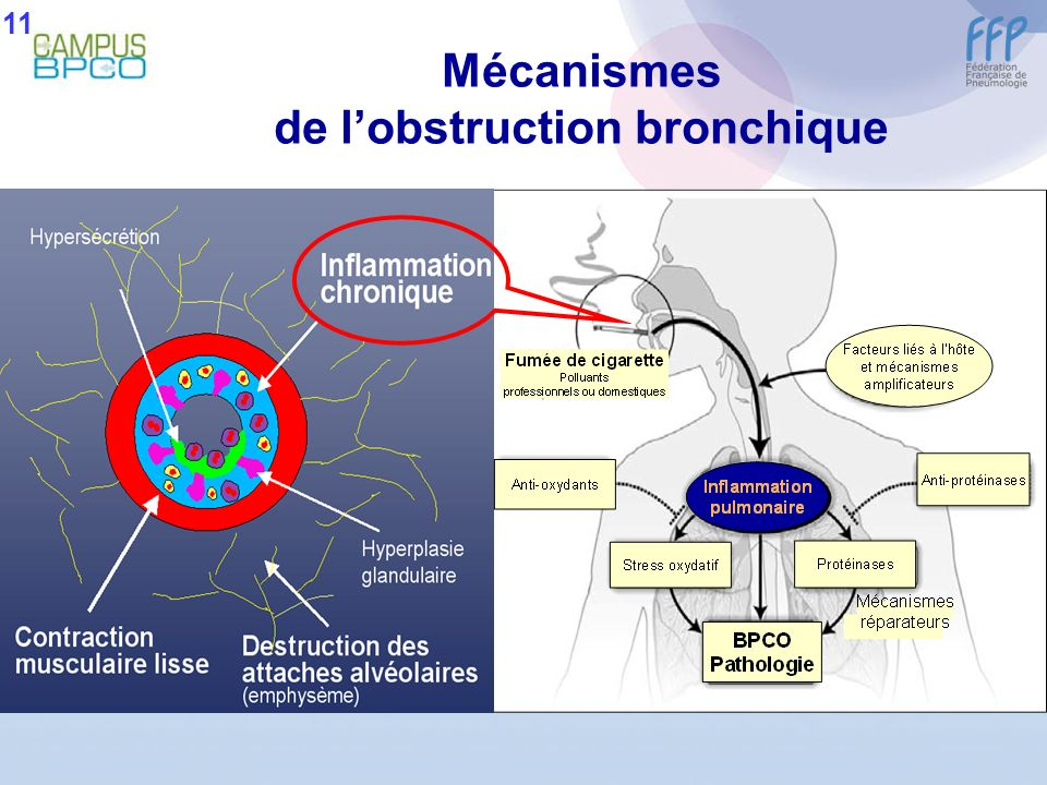 de l'obstruction bronchique