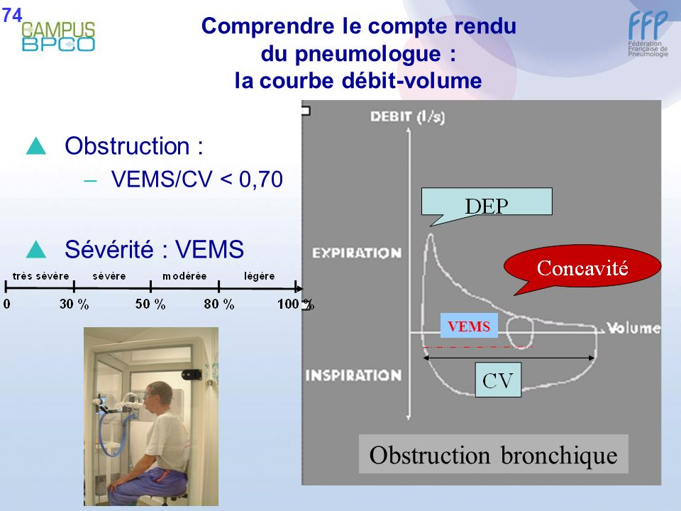 Comprendre le compte rendu du pneumologue : la courbe débit-volume