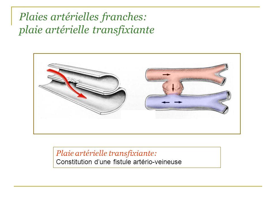 Plaies artérielles franches: plaie artérielle transfixiante