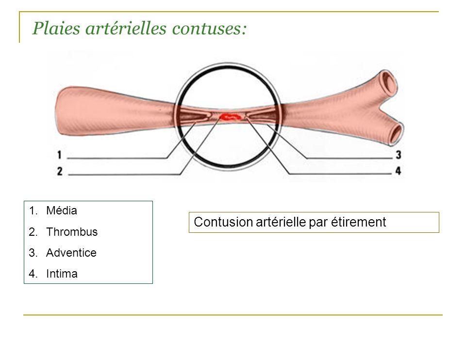 Plaies artérielles contuses:
