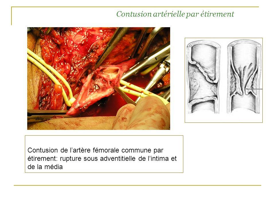 Contusion artérielle par étirement