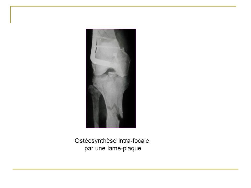 Ostéosynthèse intra-focale