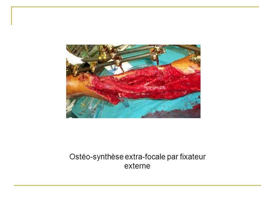 Ostéo-synthèse extra-focale par fixateur externe