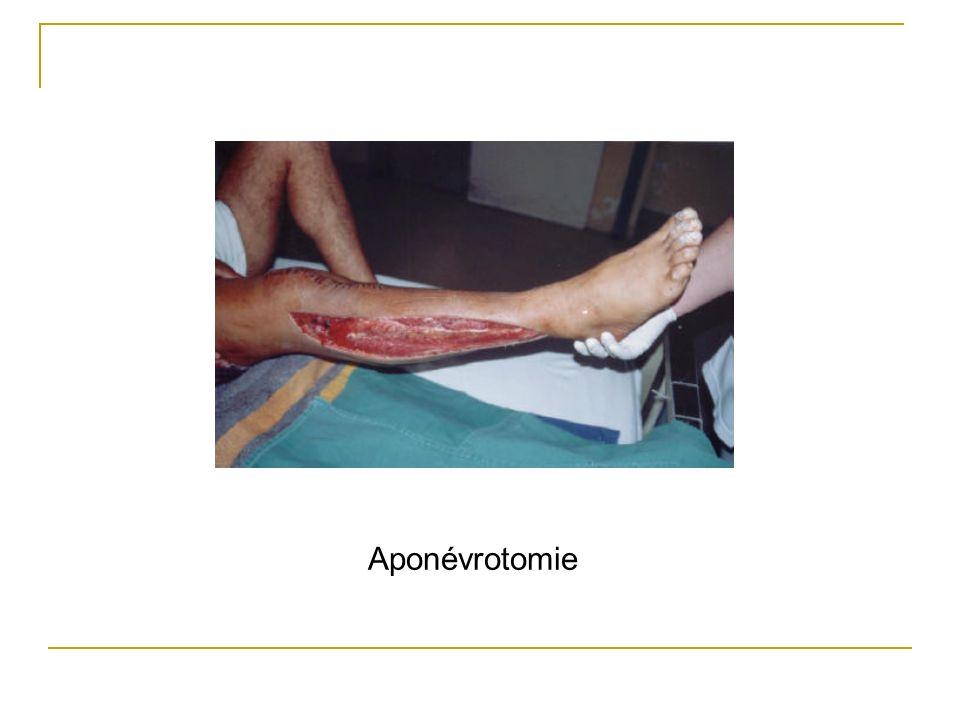 Aponévrotomie
