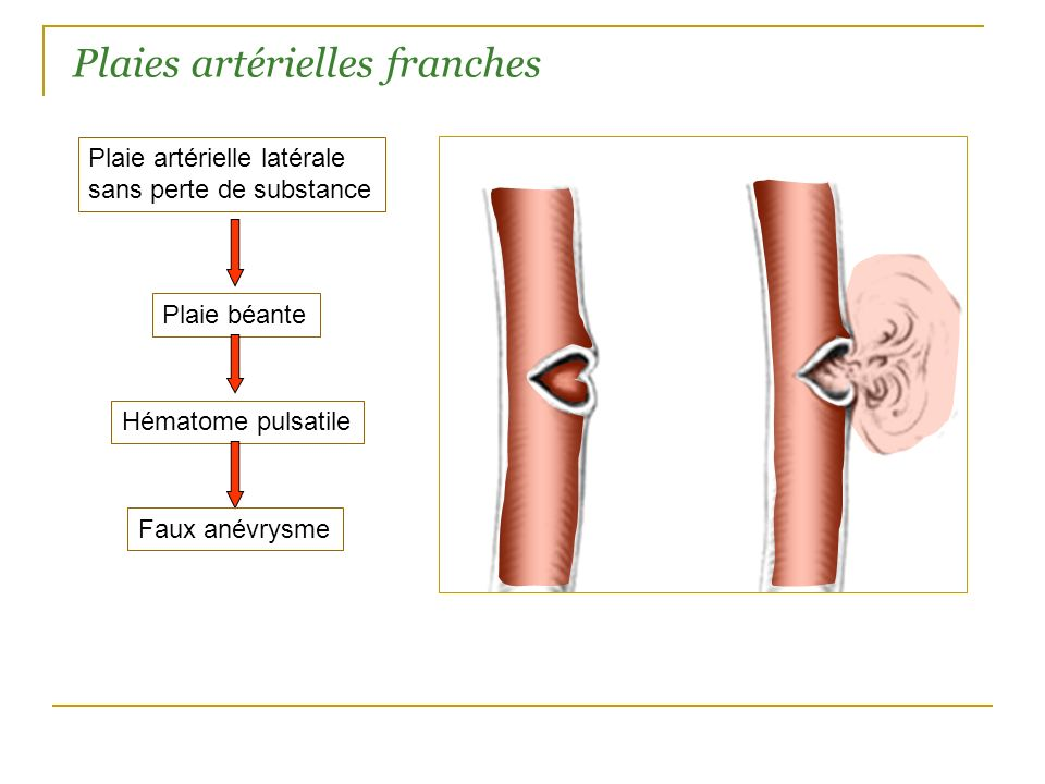 Plaies artérielles franches