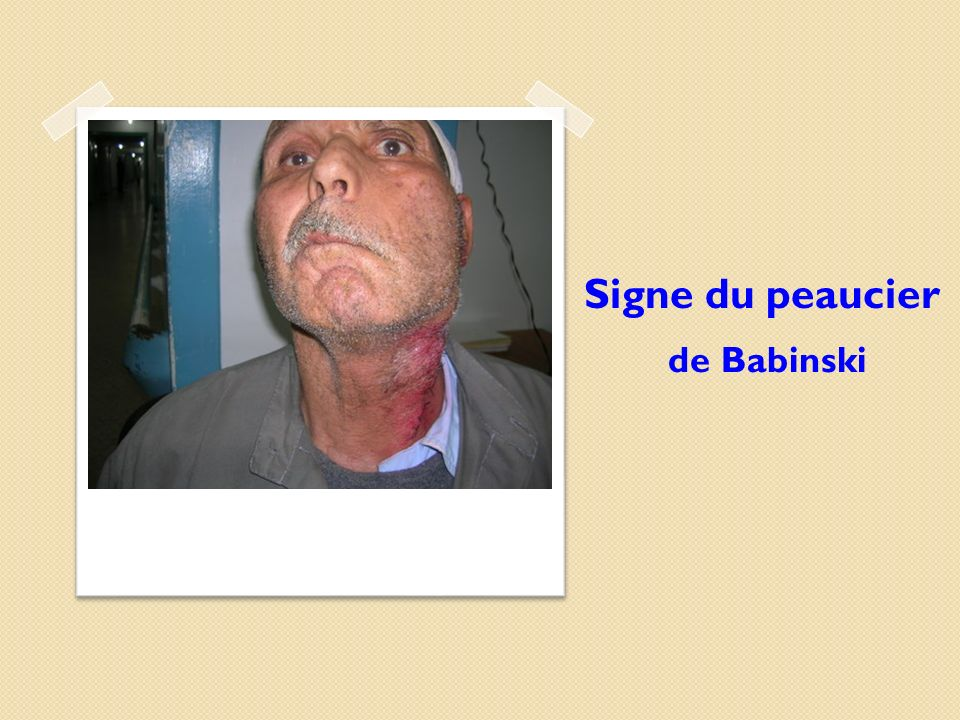 Signe du peaucier de Babinski