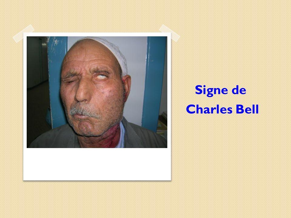 Signe de Charles Bell