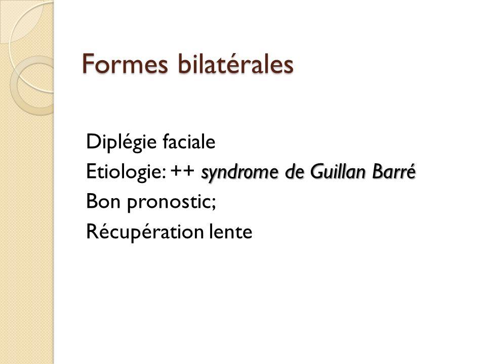 Formes bilatérales Diplégie faciale Etiologie: ++ syndrome de Guillan Barré Bon pronostic; Récupération lente