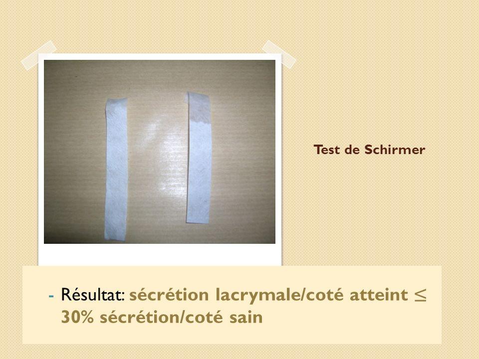 Résultat: sécrétion lacrymale/coté atteint ≤ 30% sécrétion/coté sain