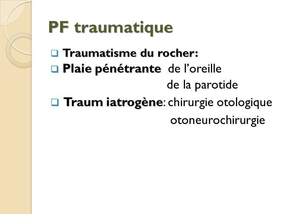 PF traumatique de la parotide Traum iatrogène: chirurgie otologique