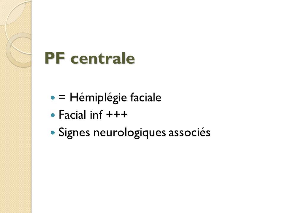 PF centrale = Hémiplégie faciale Facial inf +++
