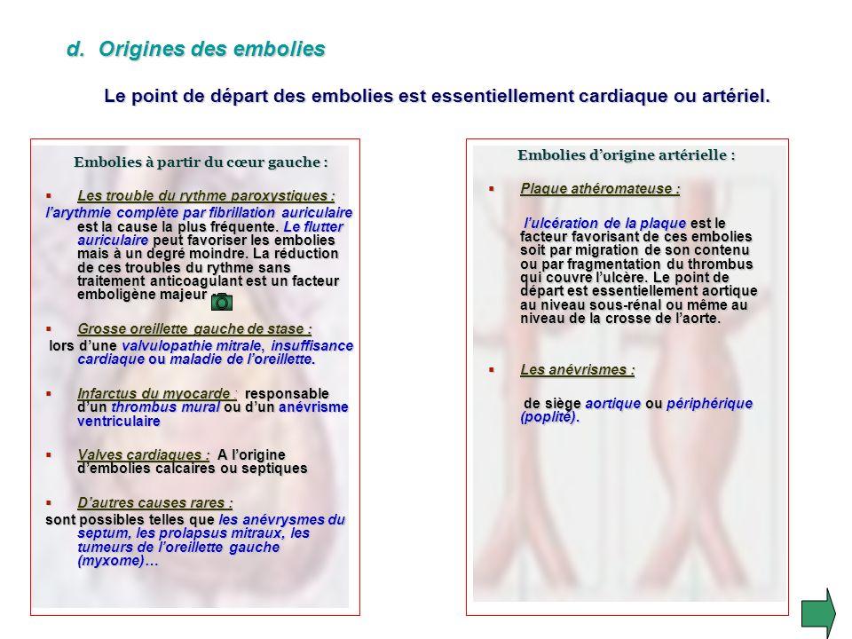 Embolies d'origine artérielle : Embolies à partir du cœur gauche :