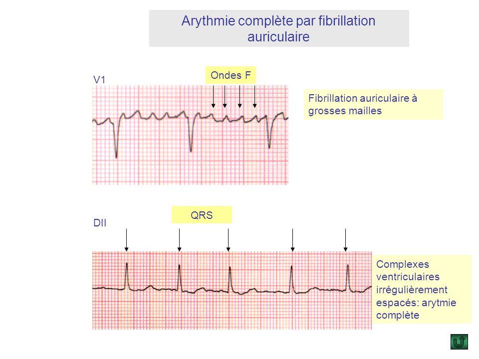 Arythmie complète par fibrillation auriculaire