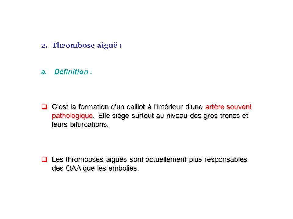 Thrombose aiguë : Définition :