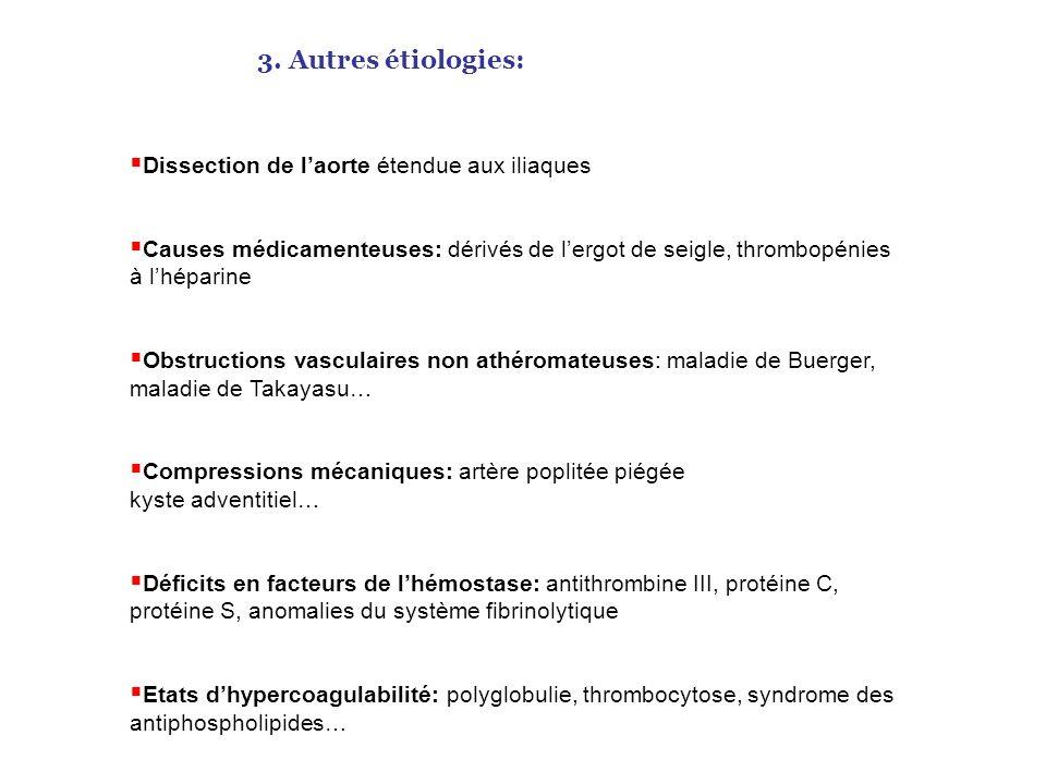3. Autres étiologies: Dissection de l'aorte étendue aux iliaques