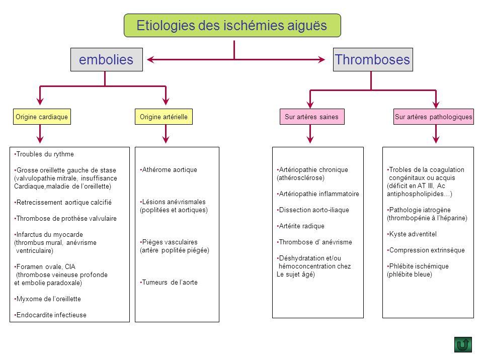 Etiologies des ischémies aiguës