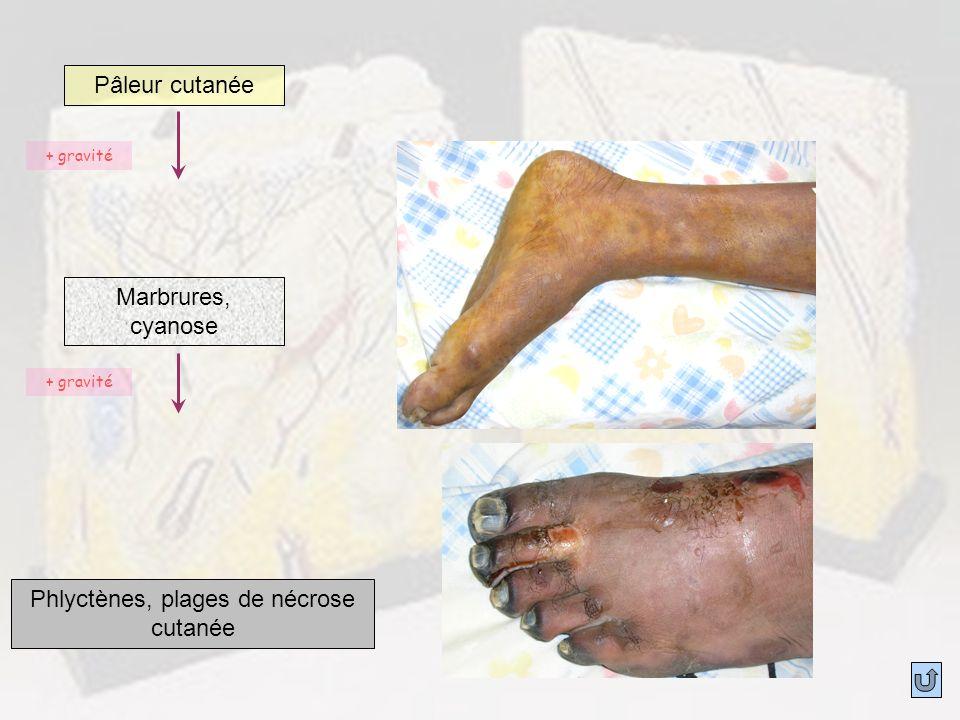 Phlyctènes, plages de nécrose cutanée