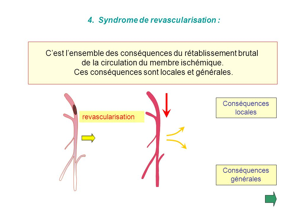 Syndrome de revascularisation :