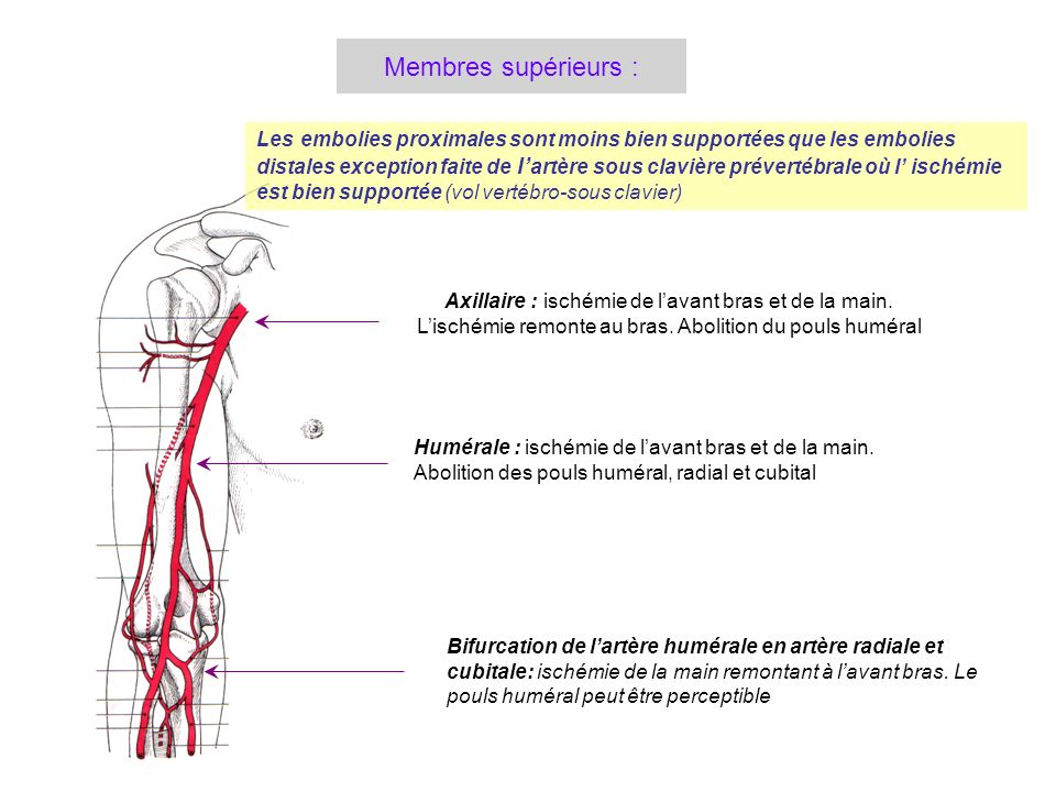 Membres supérieurs : Les embolies proximales sont moins bien supportées que les embolies.
