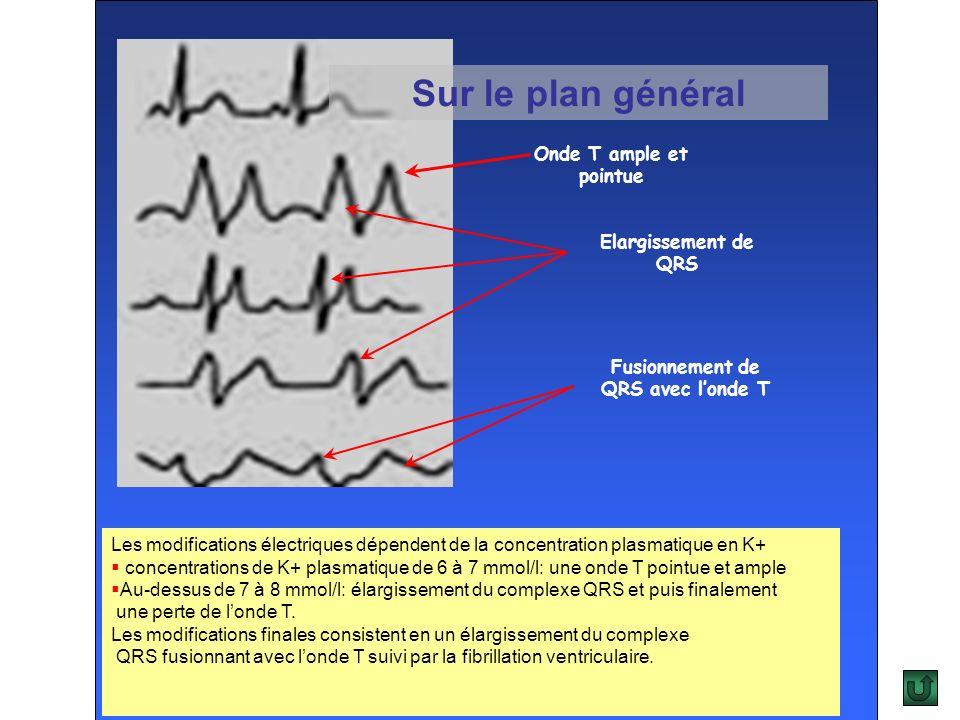 Fusionnement de QRS avec l'onde T