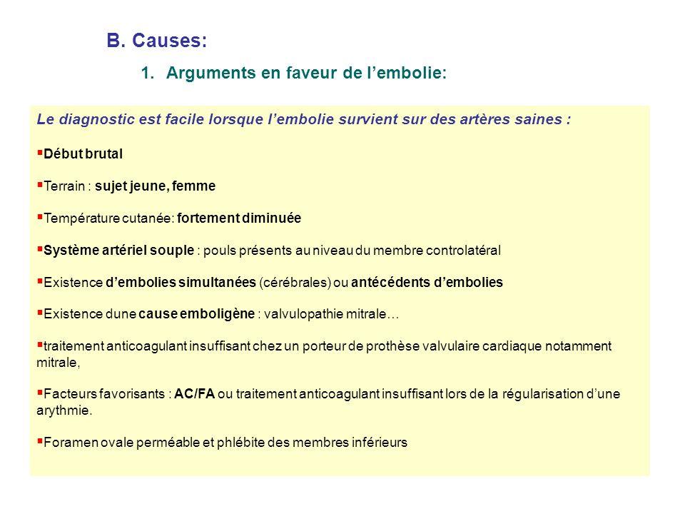 Causes: Arguments en faveur de l'embolie: