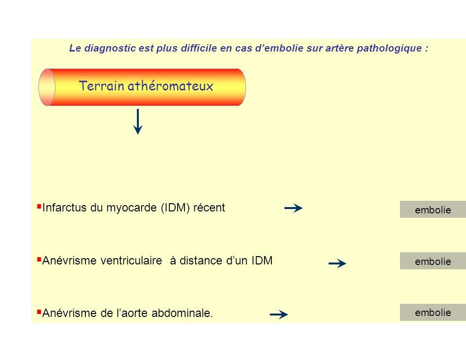 Terrain athéromateux Infarctus du myocarde (IDM) récent