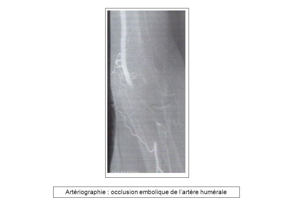 Artériographie : occlusion embolique de l'artère humérale