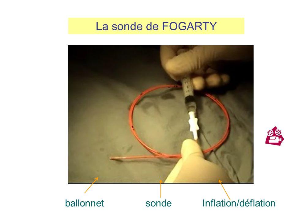 La sonde de FOGARTY ballonnet sonde Inflation/déflation