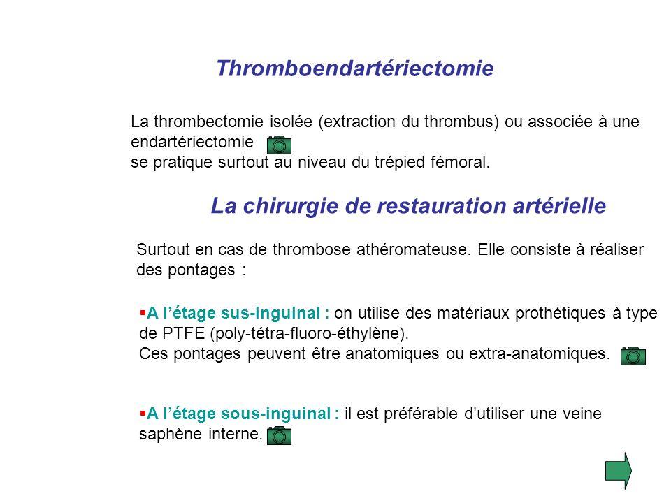Thromboendartériectomie La chirurgie de restauration artérielle
