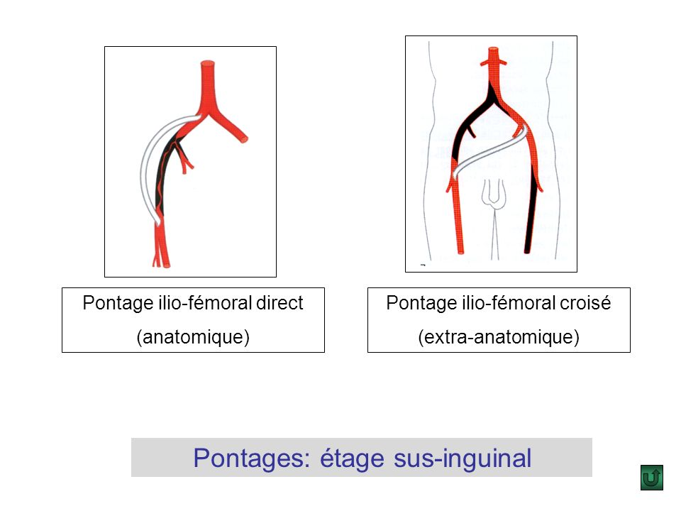 Pontages: étage sus-inguinal