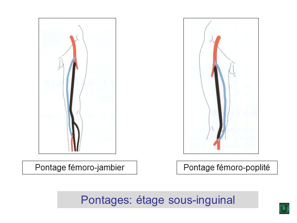 Pontages: étage sous-inguinal