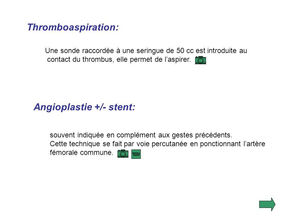 Angioplastie +/- stent: