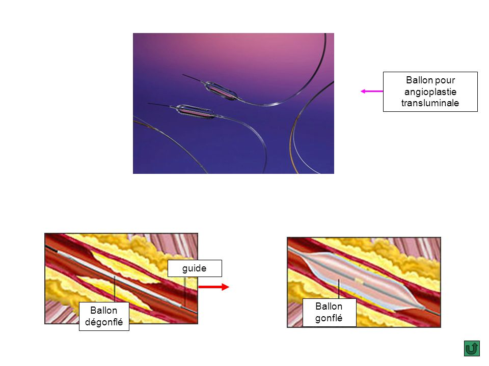 Ballon pour angioplastie transluminale