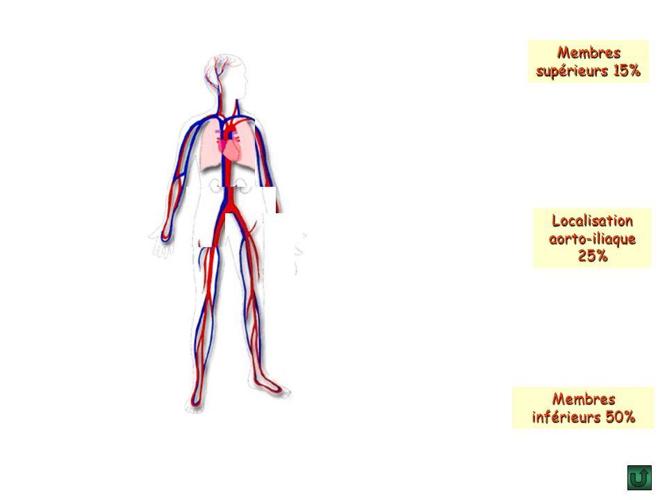 Localisation aorto-iliaque 25%