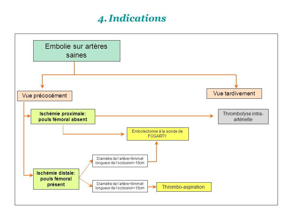 Indications Embolie sur artères saines Vue tardivement Vue précocément