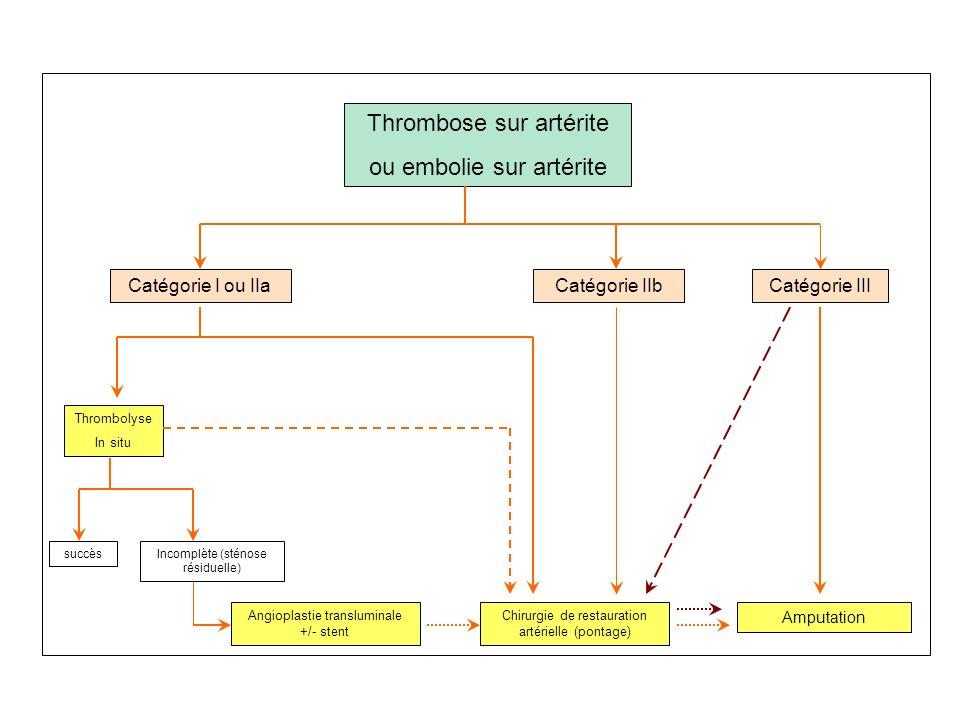 Thrombose sur artérite ou embolie sur artérite