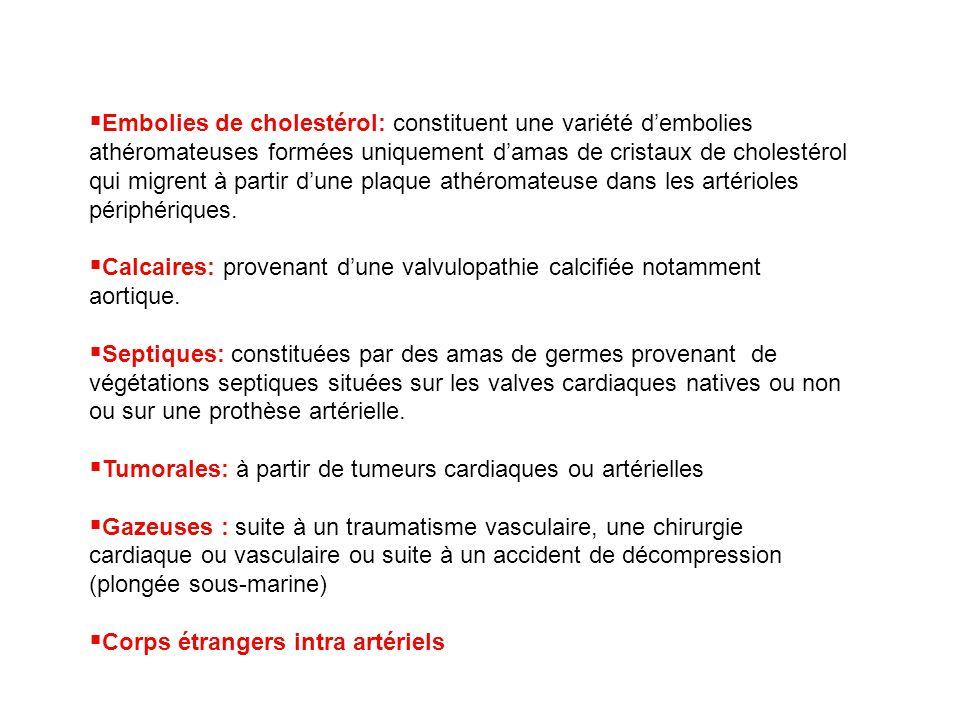 Embolies de cholestérol: constituent une variété d'embolies athéromateuses formées uniquement d'amas de cristaux de cholestérol qui migrent à partir d'une plaque athéromateuse dans les artérioles périphériques.