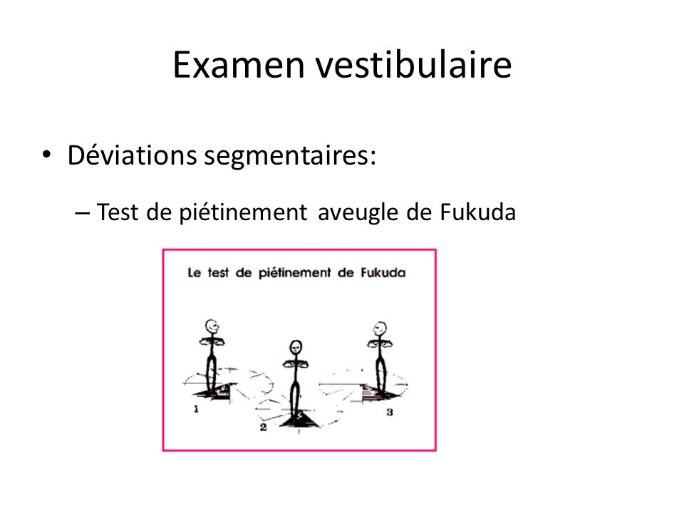 Examen vestibulaire Déviations segmentaires: