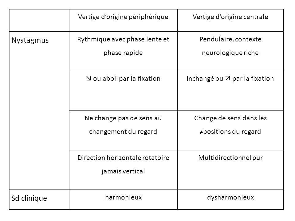 Nystagmus Sd clinique Vertige d'origine périphérique