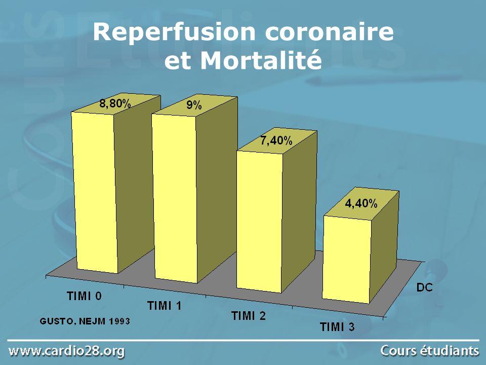 Reperfusion coronaire et Mortalité