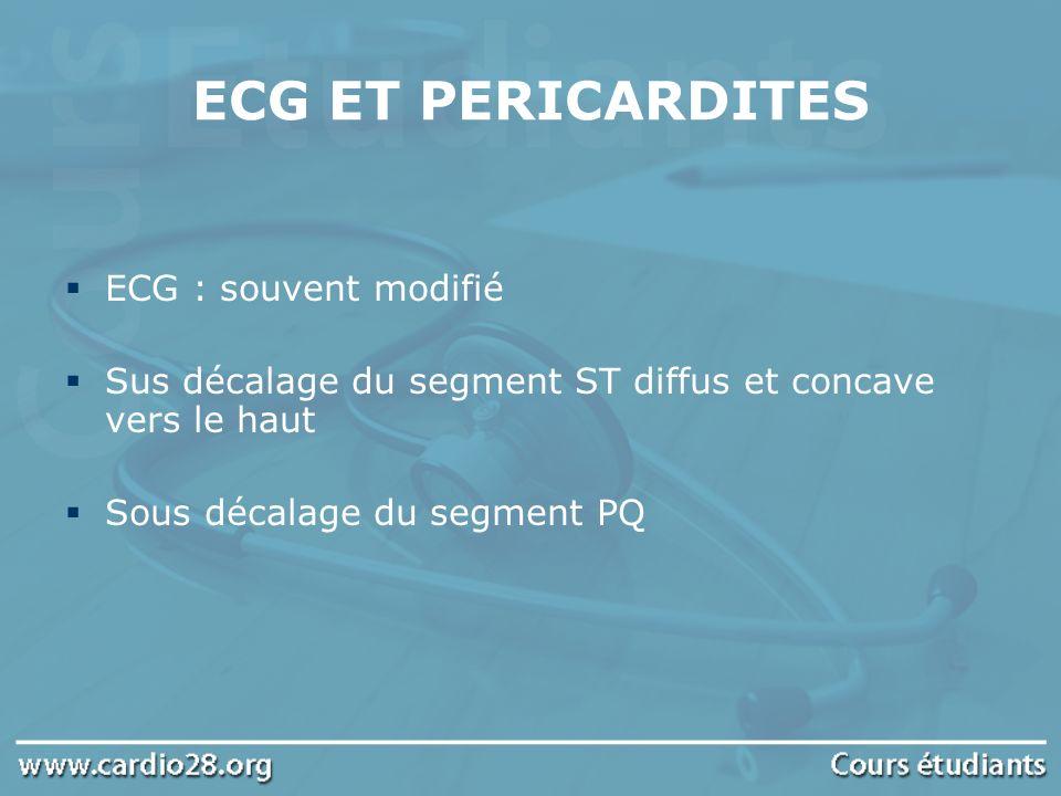 ECG ET PERICARDITES ECG : souvent modifié