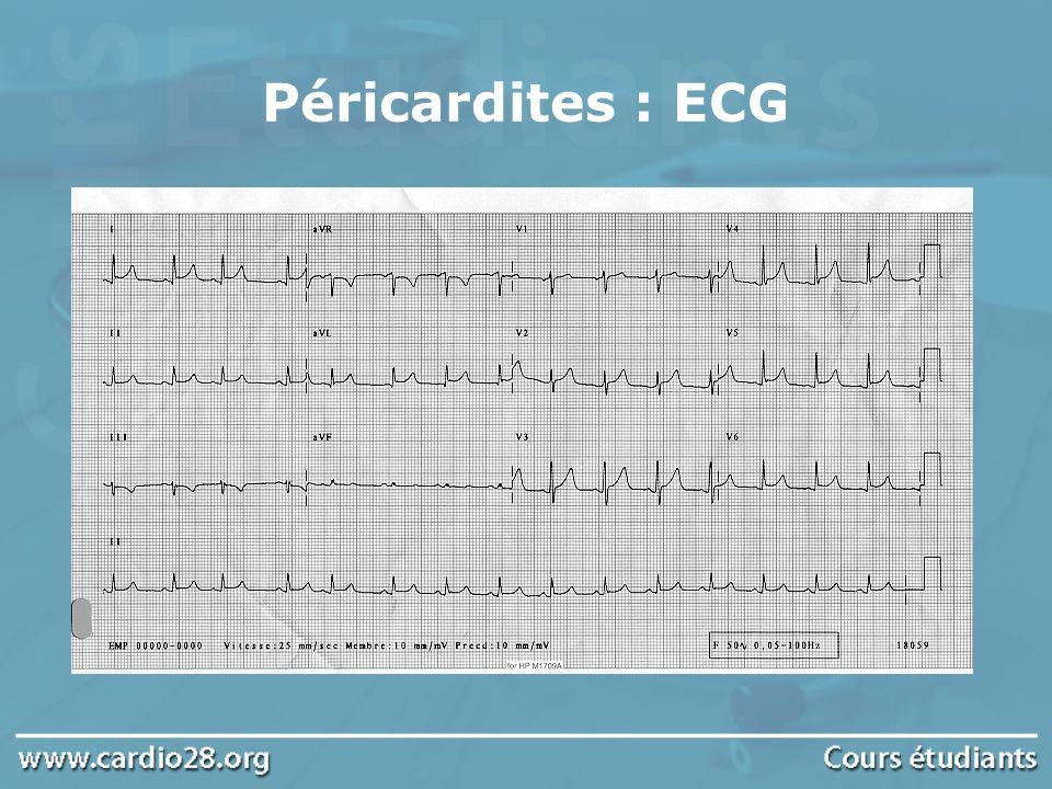 Péricardites : ECG