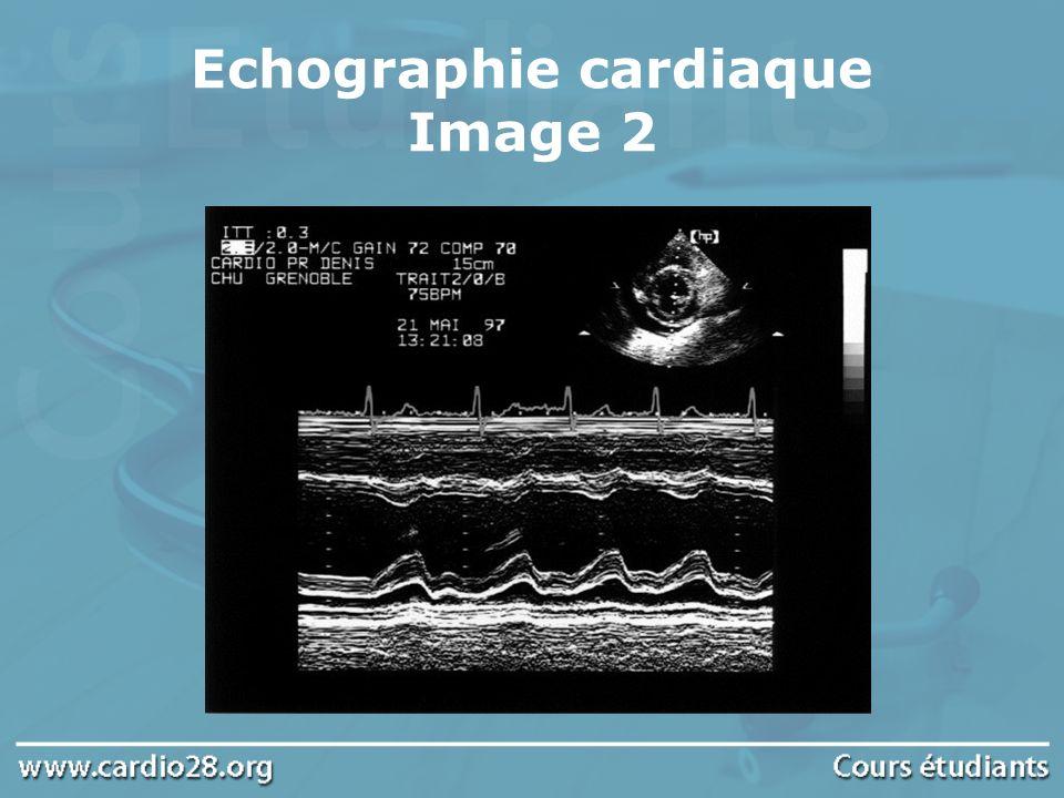 Echographie cardiaque Image 2