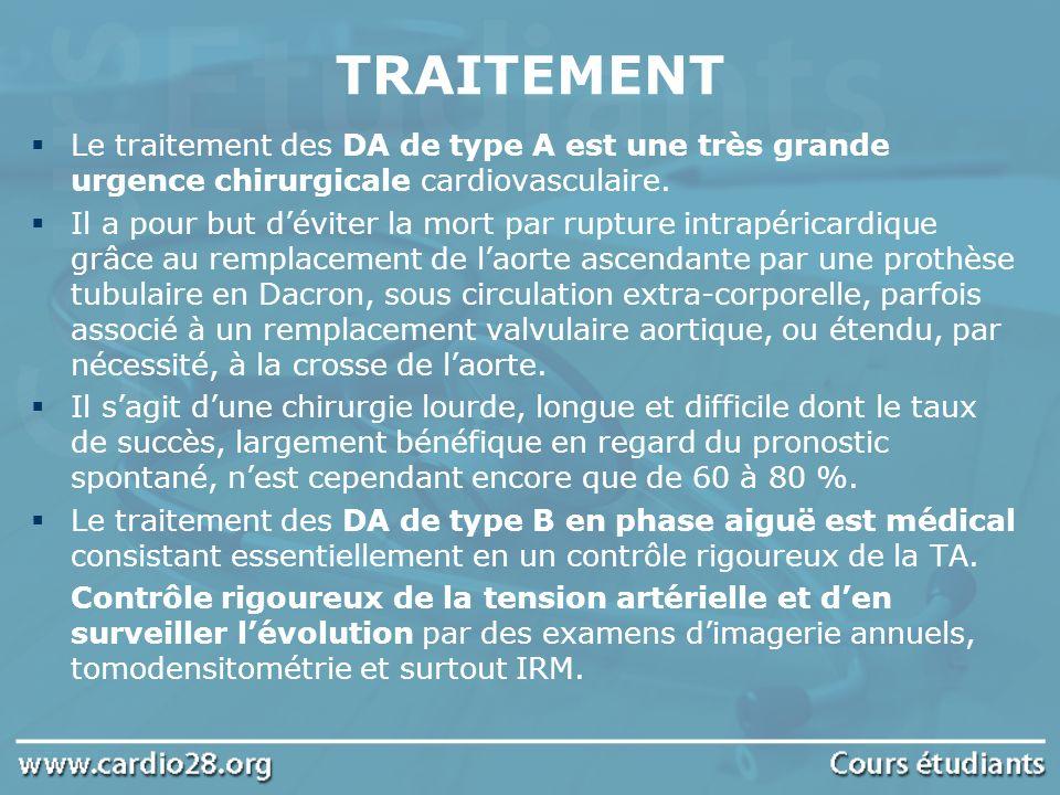 TRAITEMENT Le traitement des DA de type A est une très grande urgence chirurgicale cardiovasculaire.
