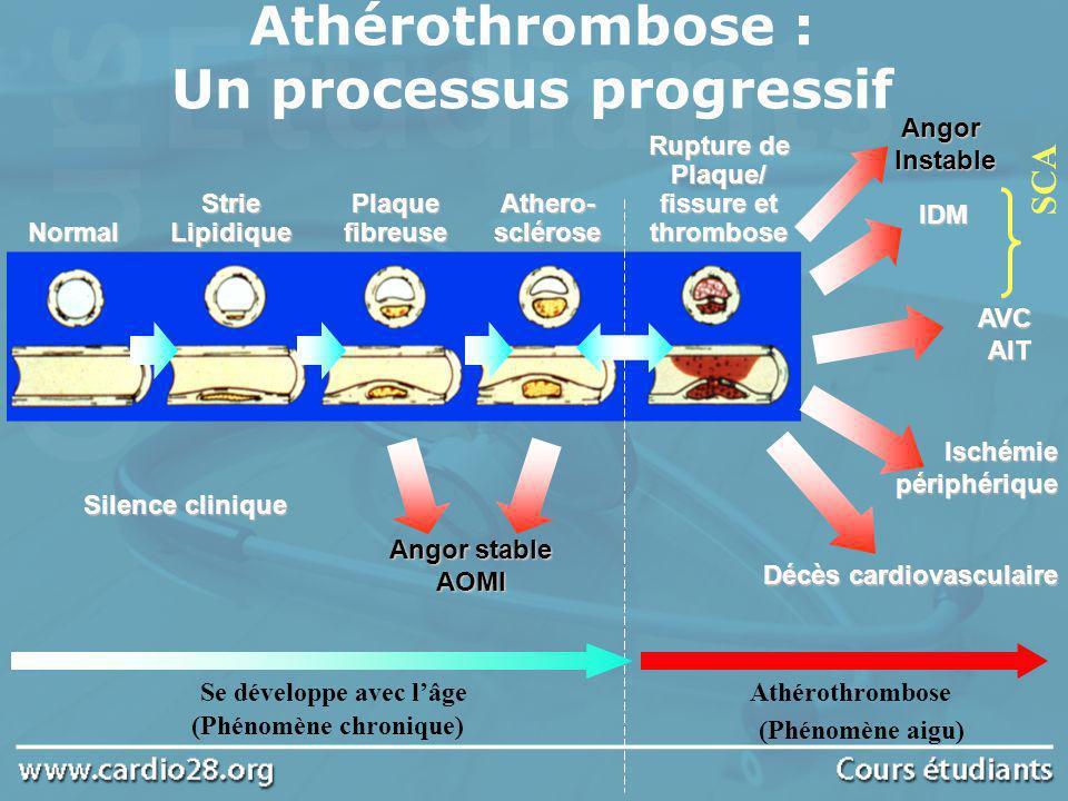 Athérothrombose : Un processus progressif