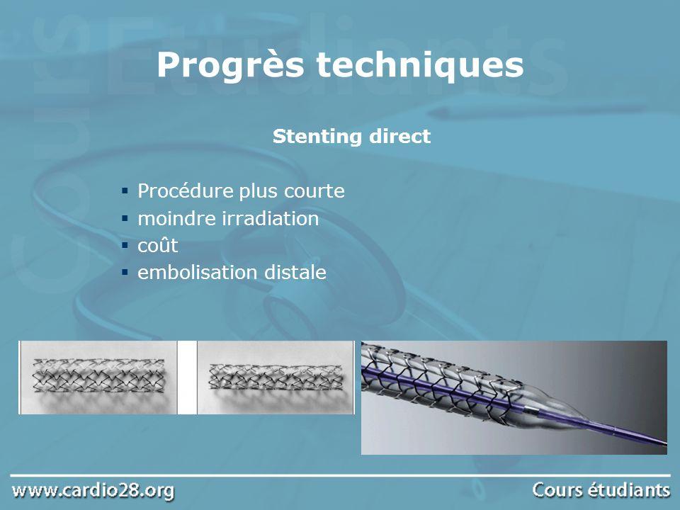 Progrès techniques Stenting direct Procédure plus courte