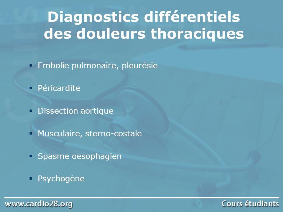 Diagnostics différentiels des douleurs thoraciques