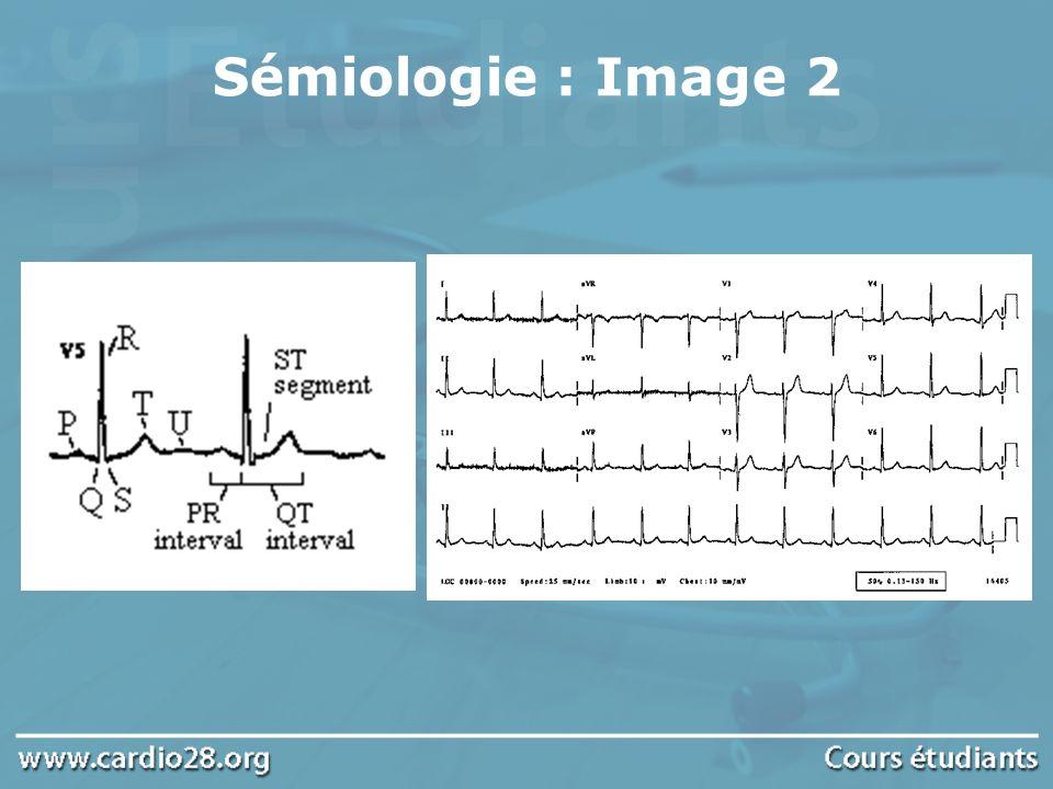 Sémiologie : Image 2