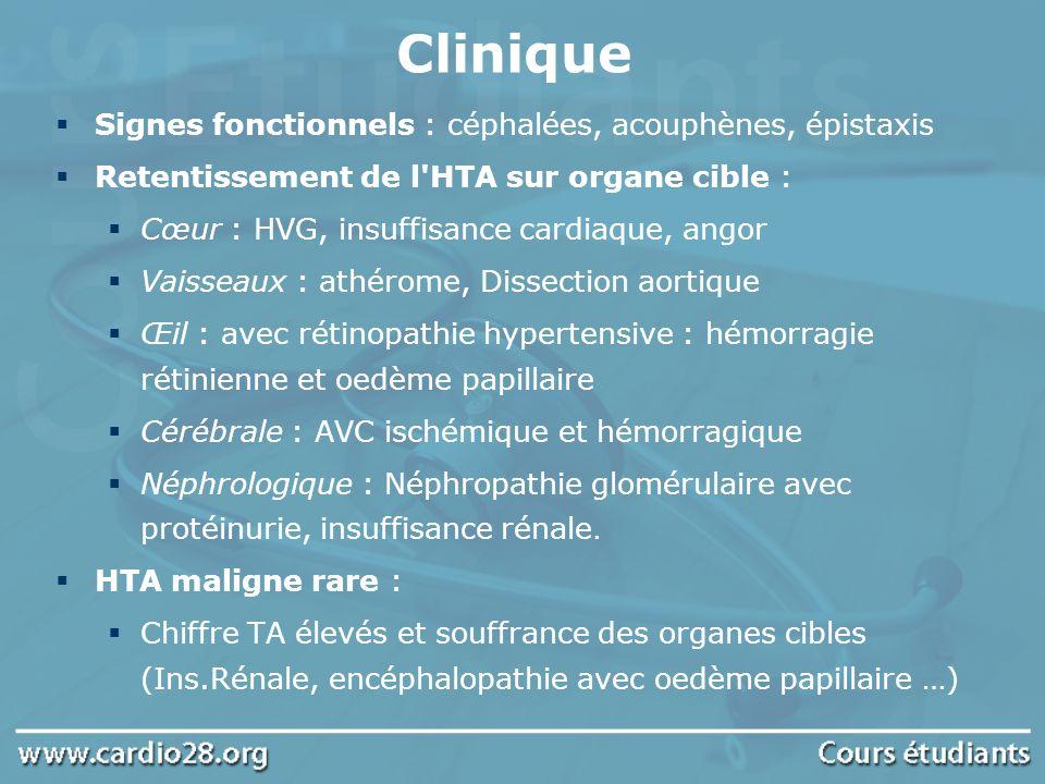 Clinique Signes fonctionnels : céphalées, acouphènes, épistaxis